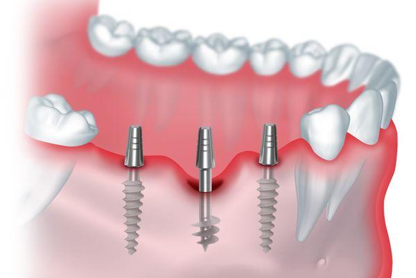 Лечение полной потери зубов с опорой на 4 или 6 имплантатов МЦ МедЮнион