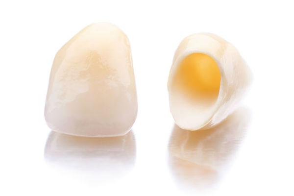 Протезирование зубов керамическими коронками МЦ МедЮнион