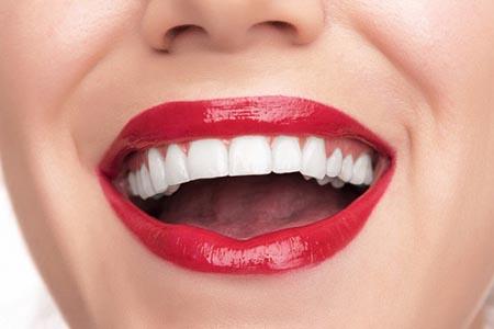 Эстетическая стоматология МЦ МедЮнион